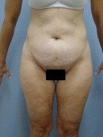Tummy Tuck-Panniculectomy